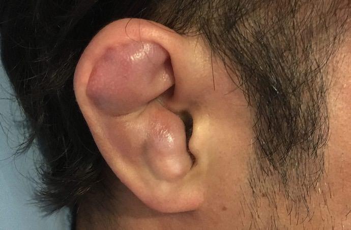 耳の怪我、耳介血腫
